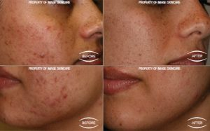 4 week IMAGE acne case study