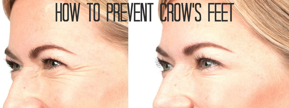 How to Prevent Crow's Feet