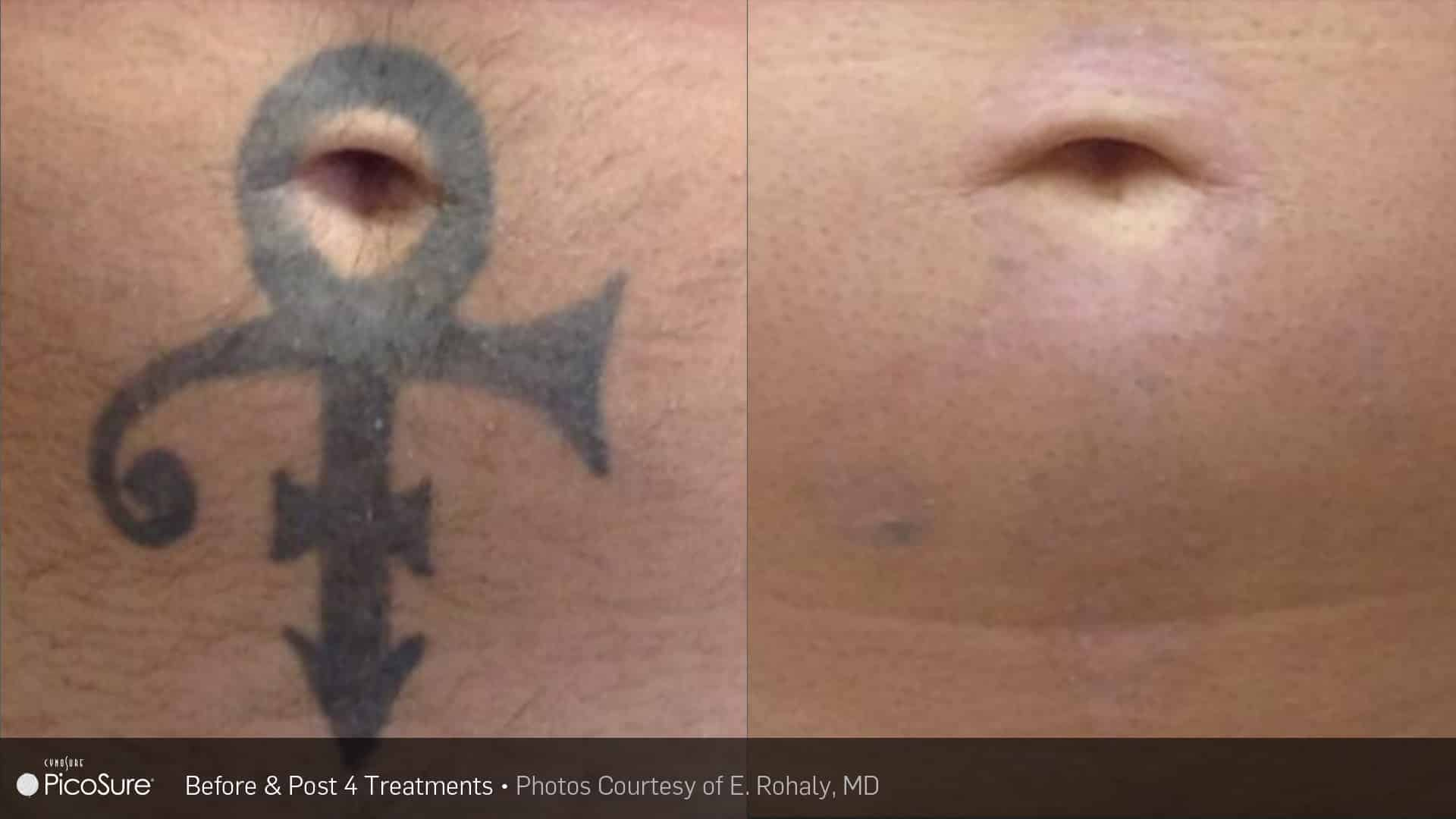 PicoSure belly Laser Tattoo Removal | Ogden, UT TimeLess Medical Spa