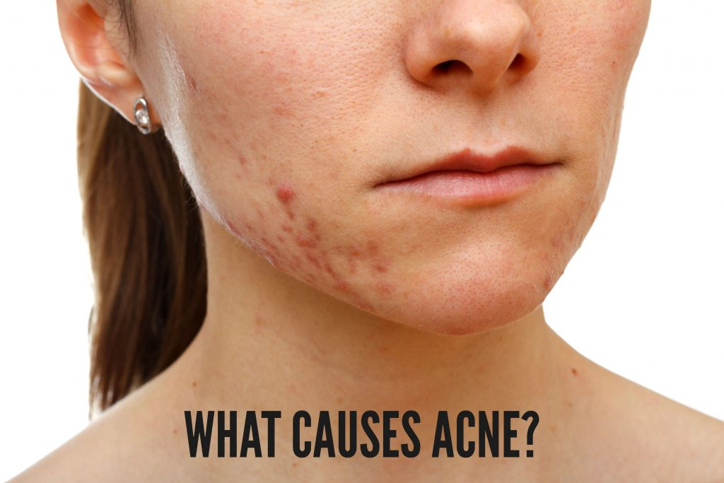What causes acne? | TimeLess Med Spa Blog |