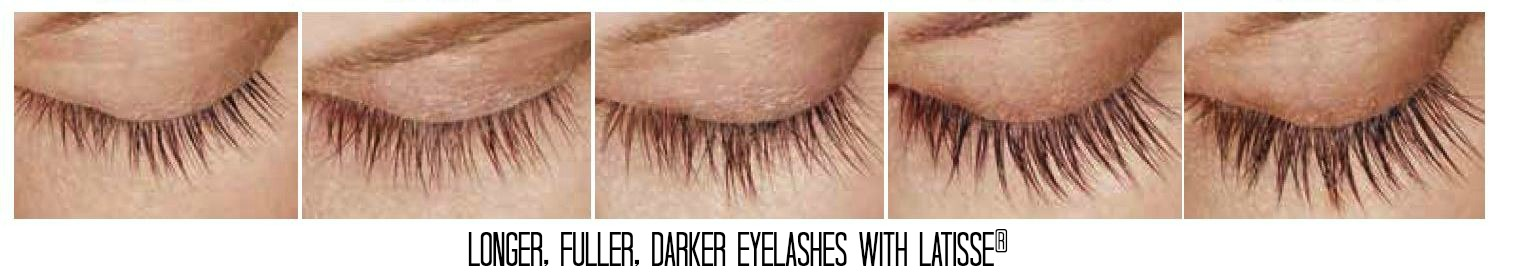 Latisse for longer, fuller, darker lashes