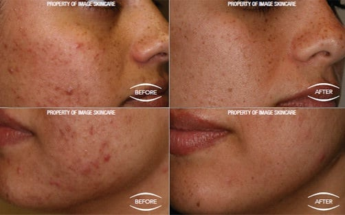 Clinical study results before and after | 4 week IMAGE Skincare acne case study - patient used Clear Cell, Vital C and Prevention+ | sold at TimeLess Medical Spa in Ogden Utah