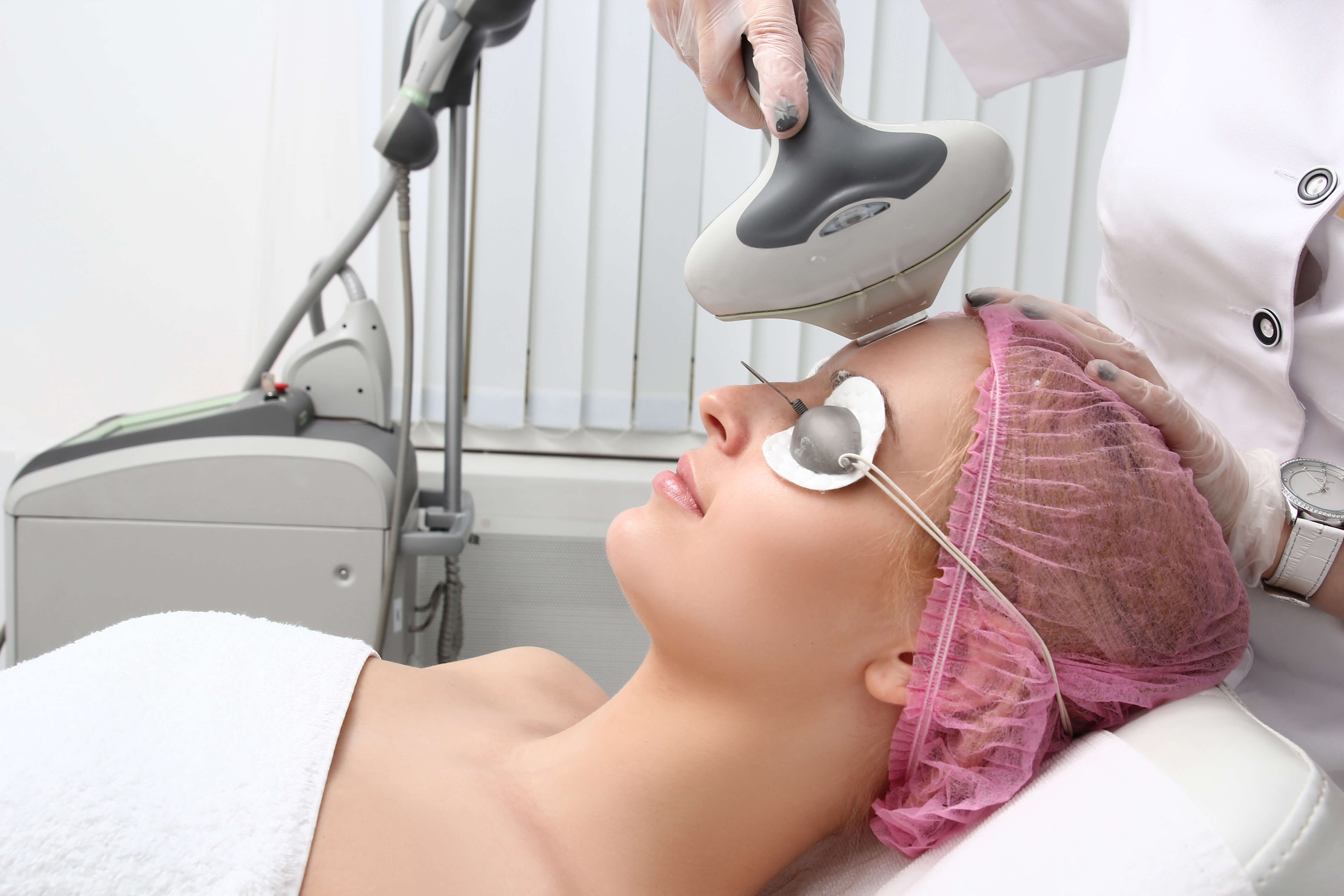 IPL Photo Facial | Ogden Utah Laser Treatments | Treatment for pigmentation | TimeLess Medical Spa