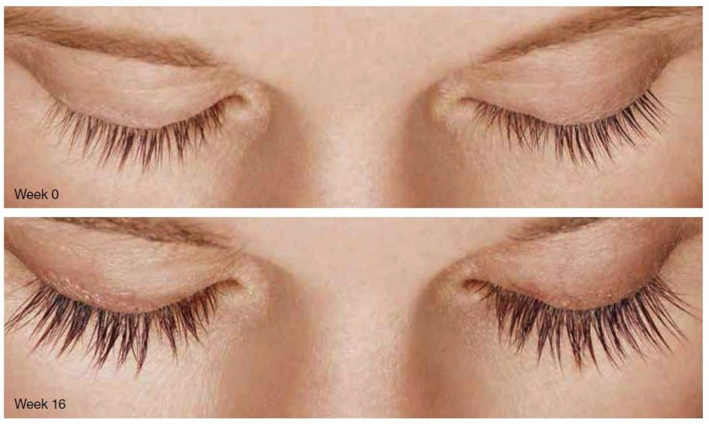 Clinical study results before and after Latisse lash growth serum | Buy Latisse in Ogden Utah at TimeLess Medical Spa