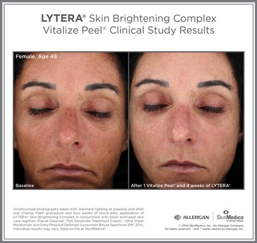 Clinical study results before and after Lytera Skin Brightening Complex | Skin Medica skin care products sold at TimeLess Medical Spa in Ogden, UT