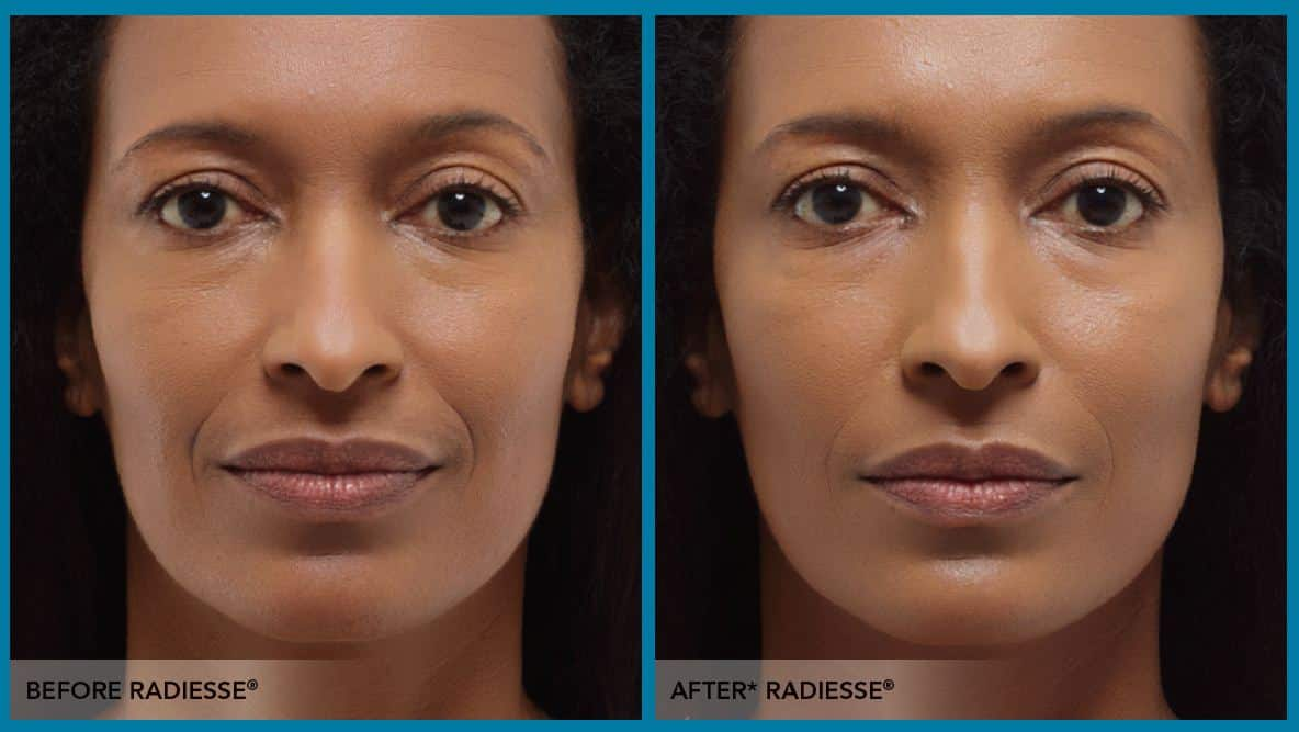 Clinical before and after Radiesse dermal filler injections | TimeLess Medical Spa Ogden Utah