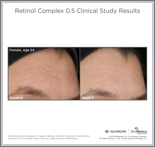 Clinical study results before and after Retinol Complex 0.5 | Skin Medica skin care products sold at TimeLess Medical Spa in Ogden Utah