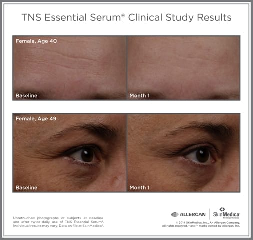 Clinical results before and after TNS Essential Serum | Skin Medica skin care products sold at TimeLess Medical Spa in Ogden Utah