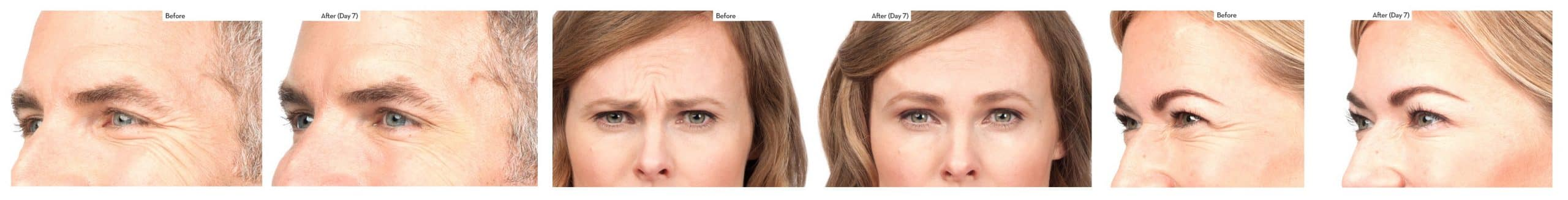 Clinical Before and After Botox | Botox injections by Physician in Ogden Utah | TimeLess Medical Spa