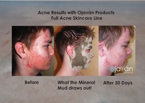 Before and after results from Ojavan Acne Skincare line - mineral mud mask | ways to treat acne | sold at TimeLess Medical Spa in Ogden Utah