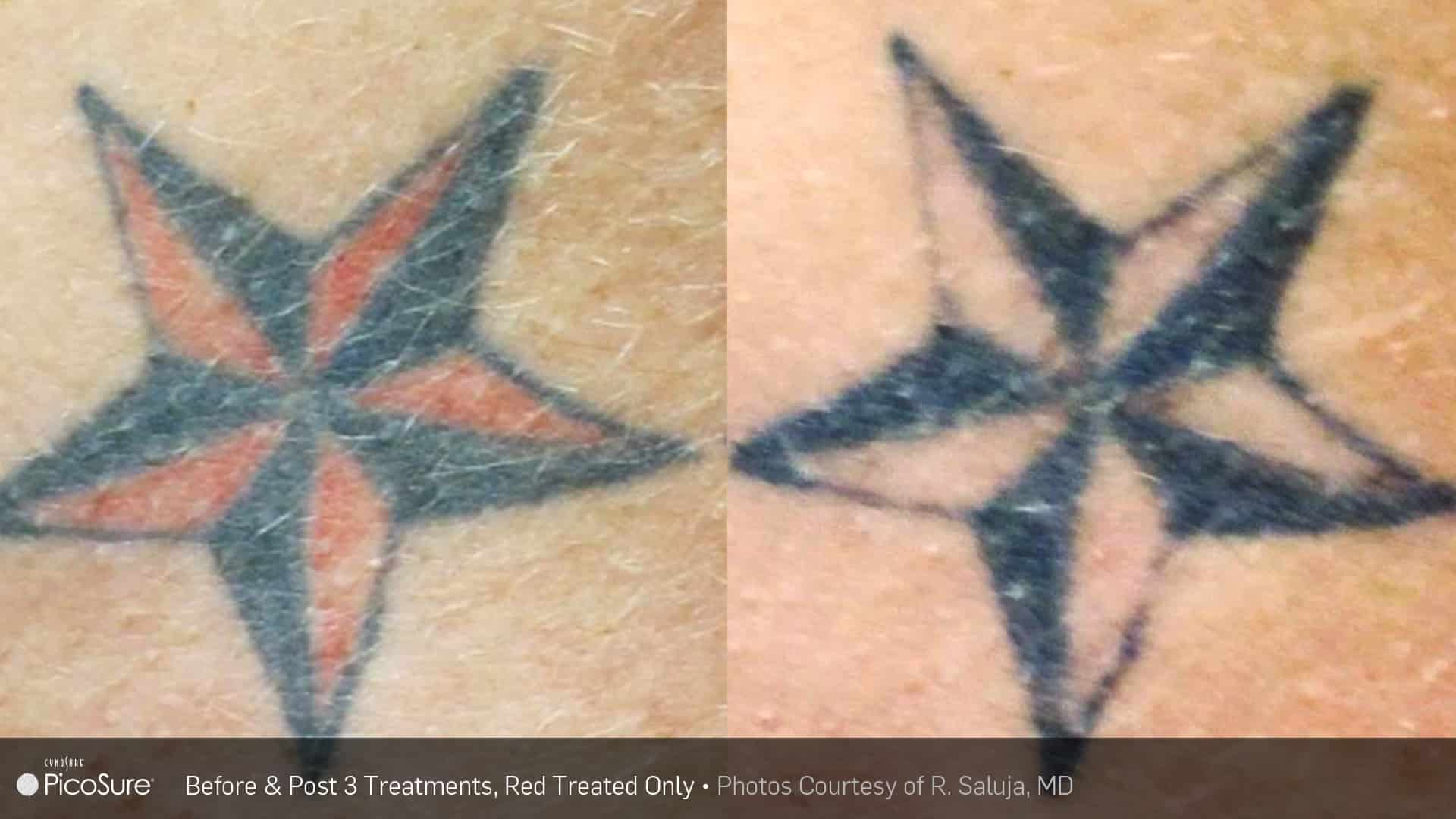 PicoSure nautical star Laser Tattoo Removal | Ogden, Ut TimeLess Medical Spa