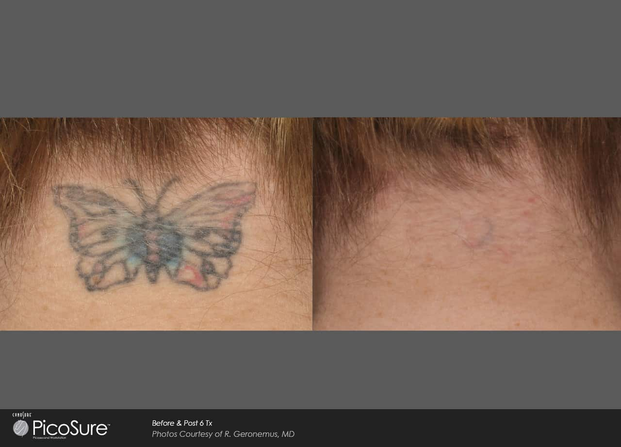 PicoSure butterfly Laser Tattoo Removal | Ogden, UT TimeLess Medical Spa