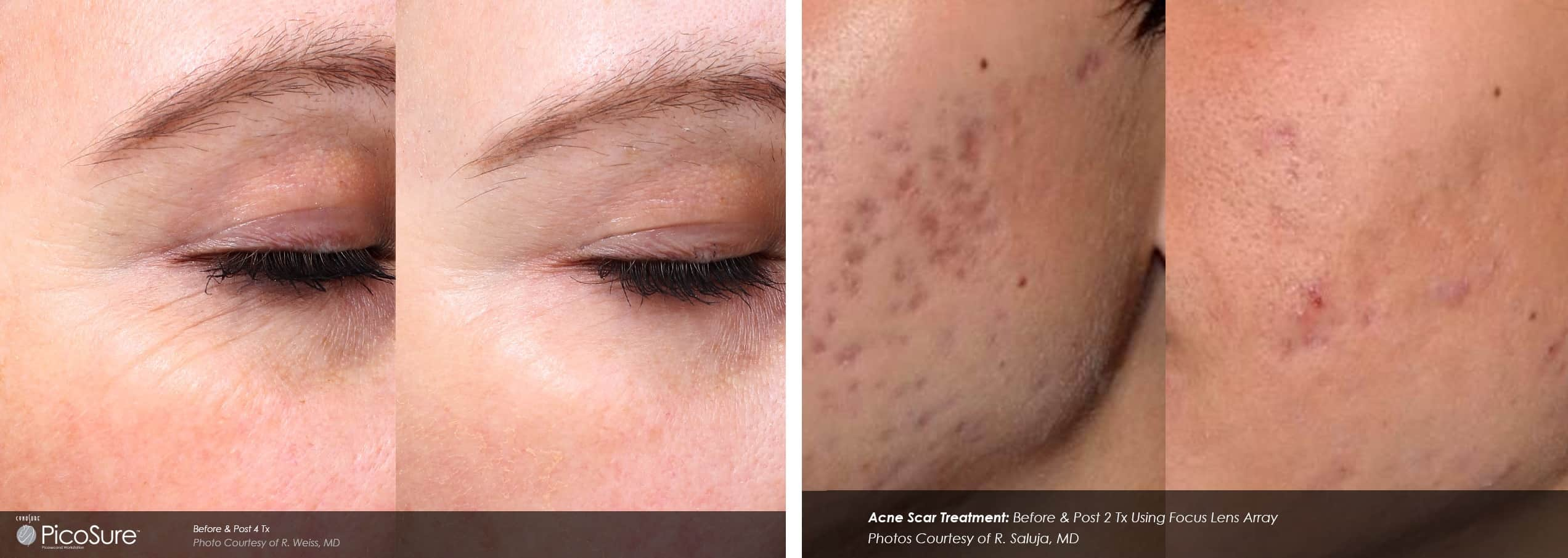 Before & After photo - acne scars significantly reduced by PicoSure