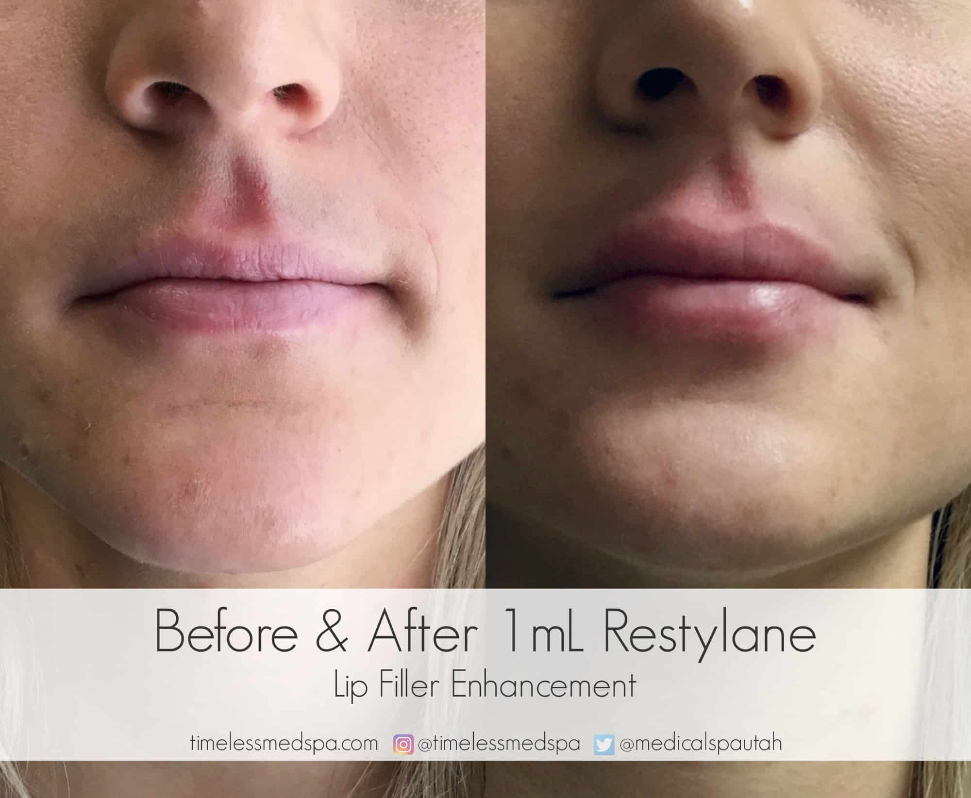 Lip Injections || Before and after lip filler enhancement with Restylane || TimeLess Medical Spa Ogden, Utah || Dr. Williams