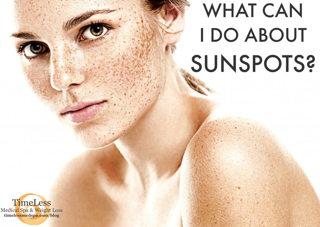 What can I do about sunspots? What are sunspots? How can I prevent sun damage and sunspots?   TimeLess Medical Spa Blog   Skin Care tips   Ogden Utah