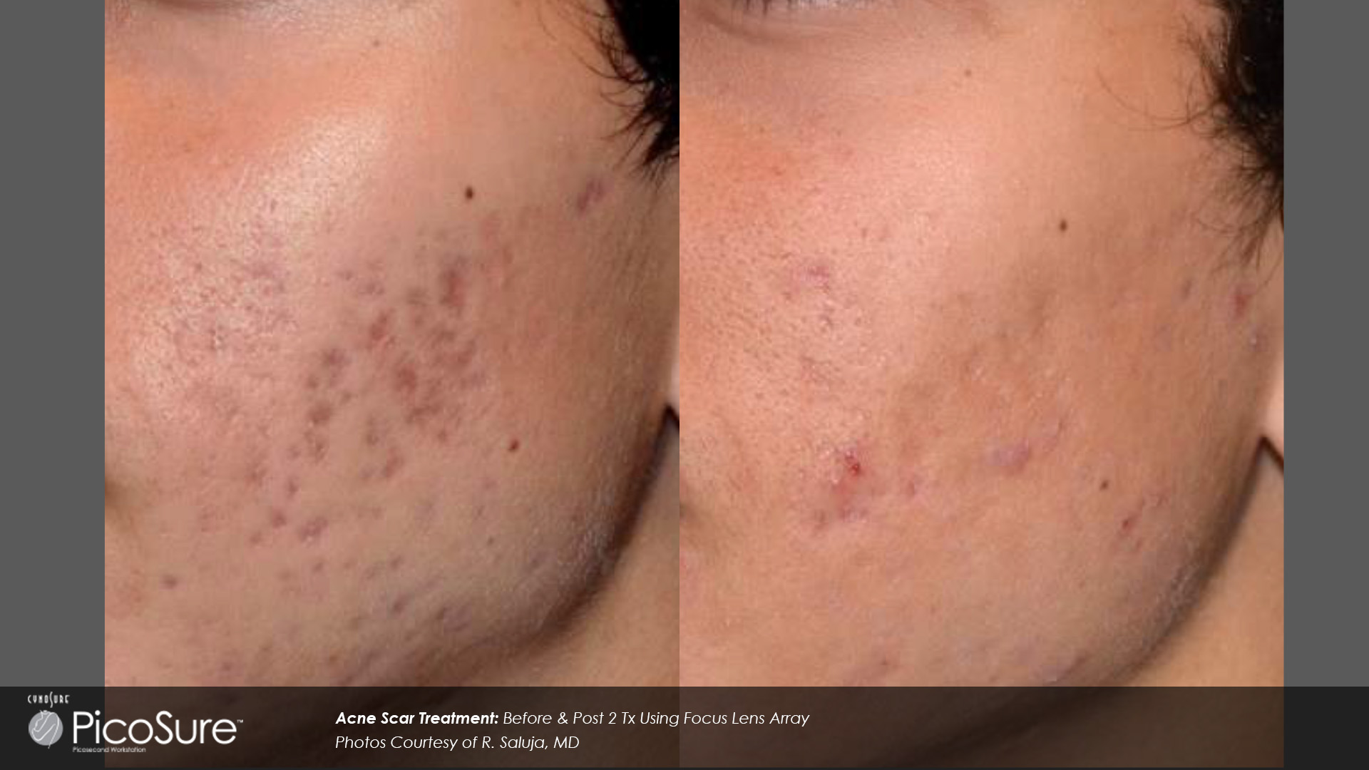 Close-up on facial skin showing the acne treatment effects of BA PicoSure