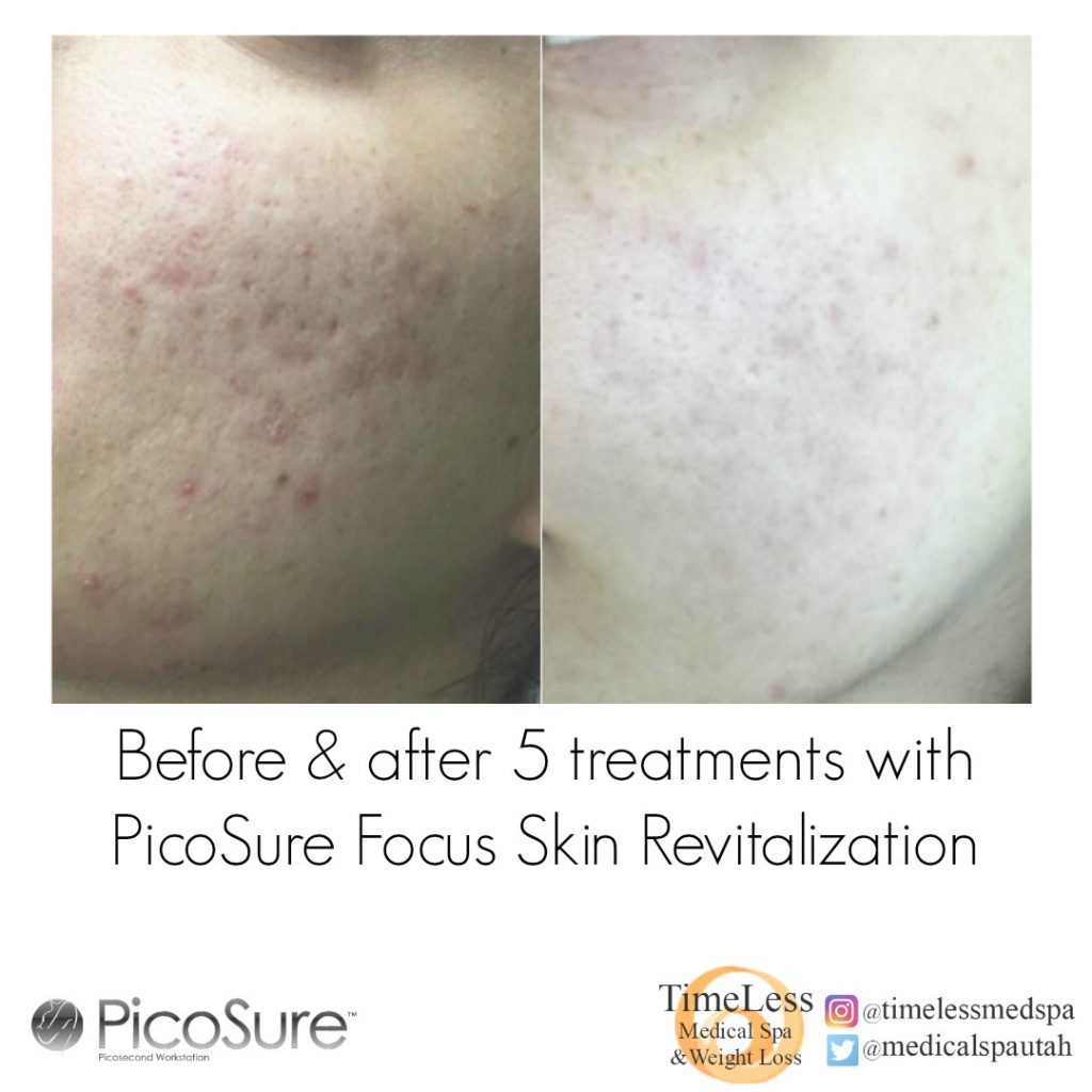 PicoSure before and after acne scarring treatment - TimeLess Medical Spa in Ogden, UT