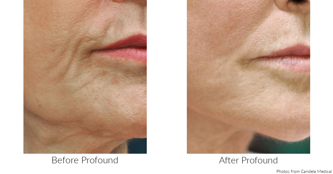 before and after Profound injectable radio frequency treatment - Candela Medical - available at TimeLess Medical Spa in Ogden, Utah