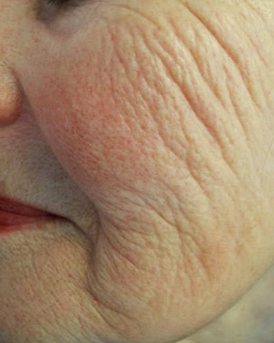 Close-up of an elderly female's wrinkled skin that needs treatment