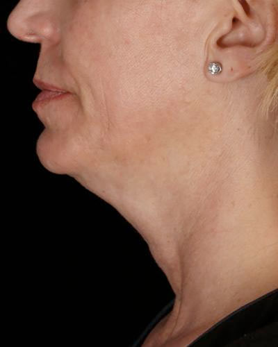 Close-up of an elderly woman's face that needs skin treatment
