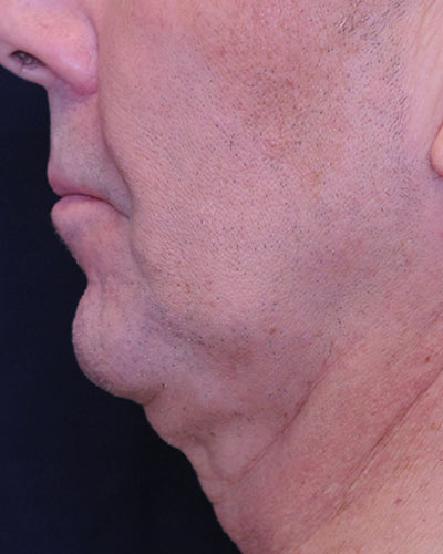 An adult male's sagging facial skin that needs anti-aging treatment