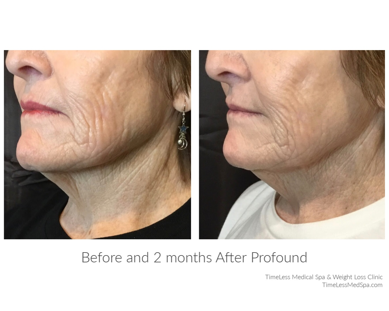Reduced age lines and tighter skin after 2 months of using Profound RF