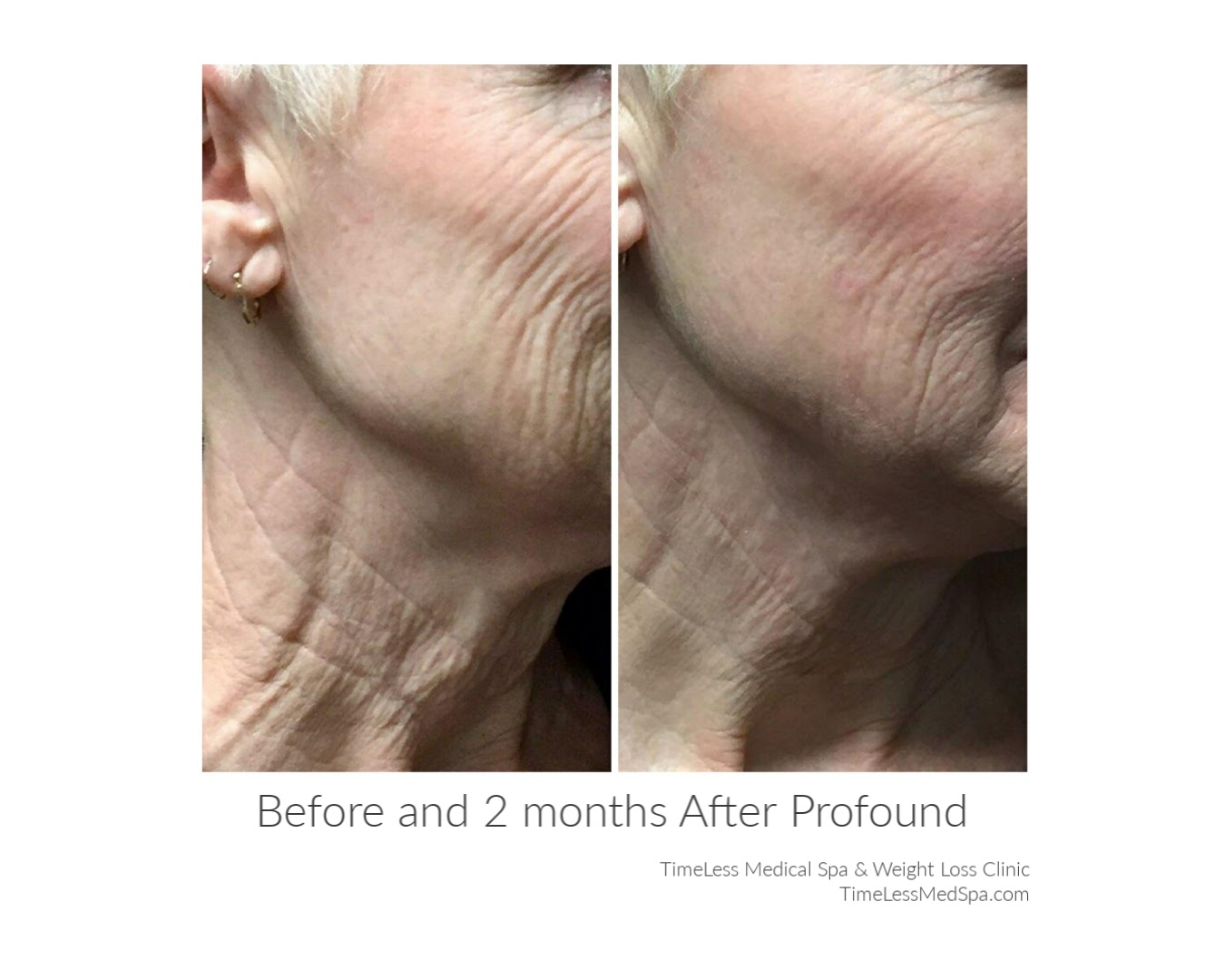Wrinkles significantly reduced and skin tightened after 2 months of Profound