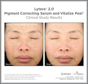 Before & After photo showing the effects of Lytera 2.0 facial chemical peel