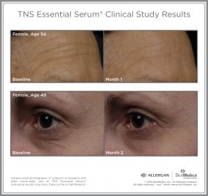 Wrinkles and age lines reduced after 1-2 months of TNS Essential Serum