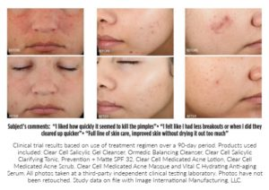 Series of close-ups showing a patient's progress after getting acne treatment