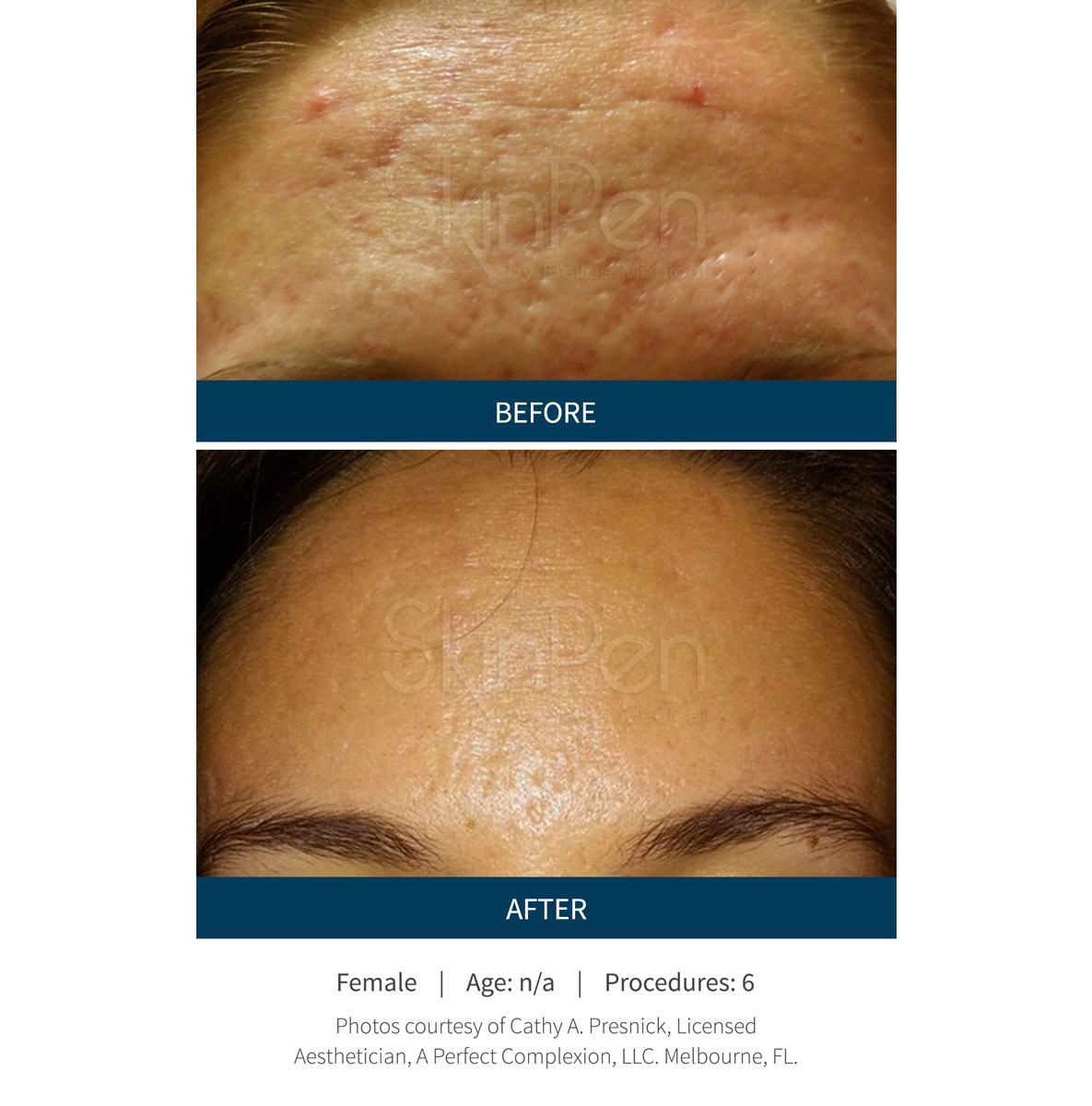 The SkinPen microneedling before and after clinical results.