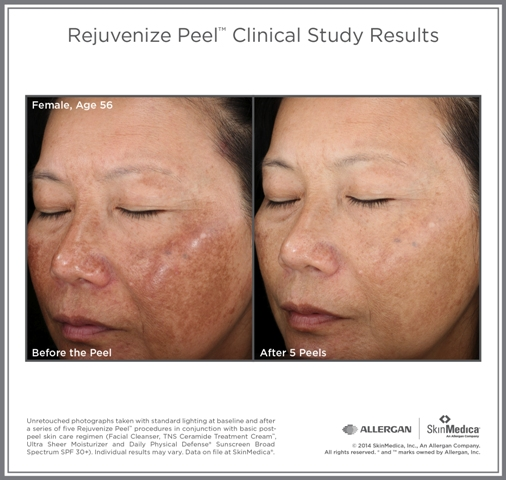 Greatly reduced blemishes and facial spots after 5 Rejuvenize Peel sessions