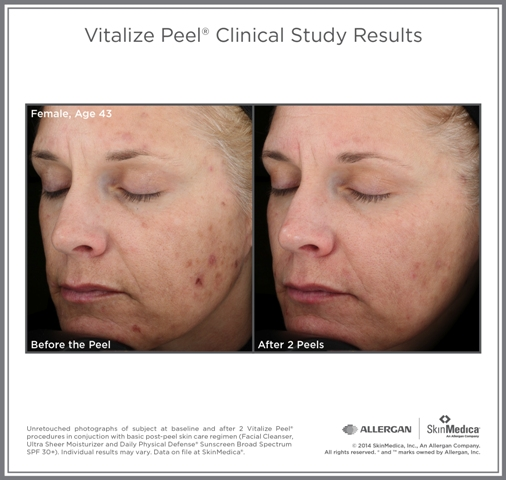 Drastically reduced blemishes and acne marks after 2 Vitalize Peel sessions