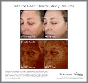 Before & After photo - reduced blemishes and lines after Vitalize Peel