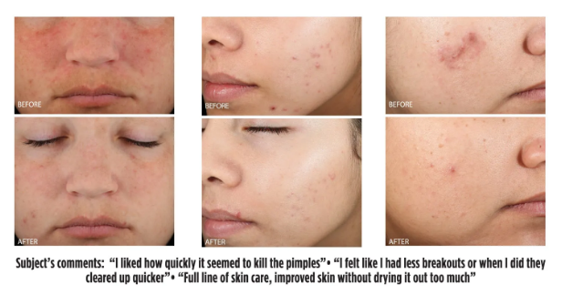 acne before and after results