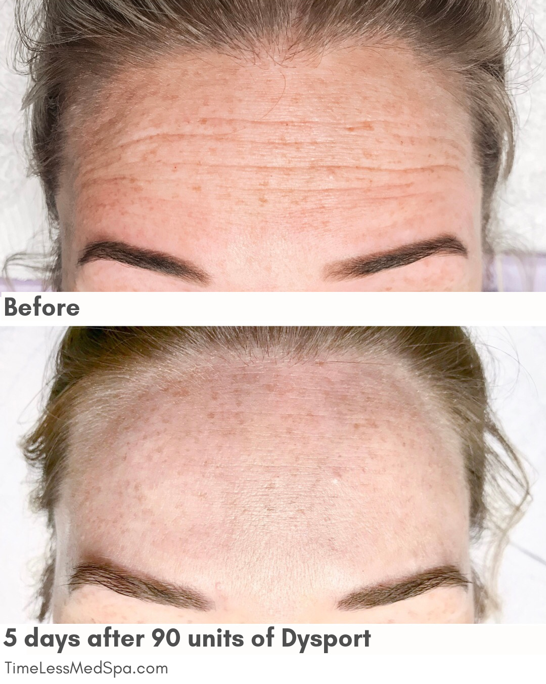 before and after dysport forehead